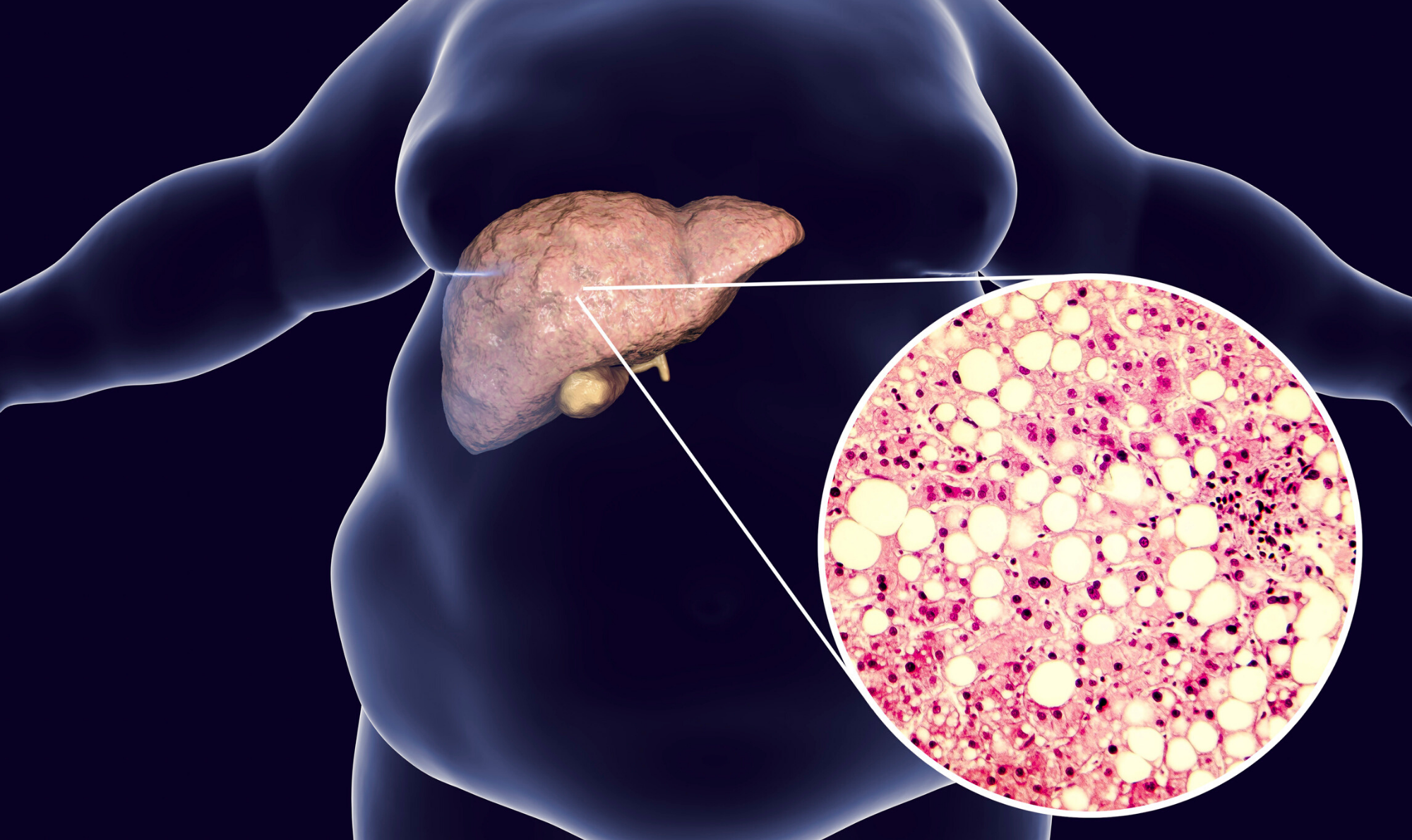 znakovi i simptomi gubitka masti numia tablete za mršavljenje